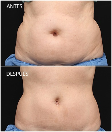resultados-coolsculpting-1