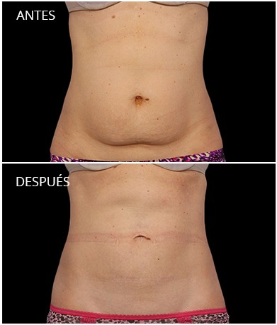 resultados-coolsculpting-2