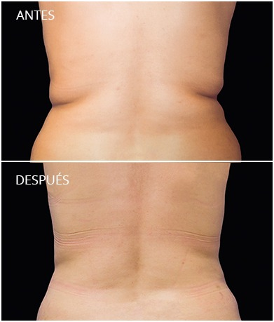 resultados-coolsculpting-3
