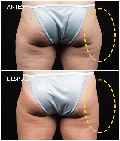 resultados-coolsculpting-4
