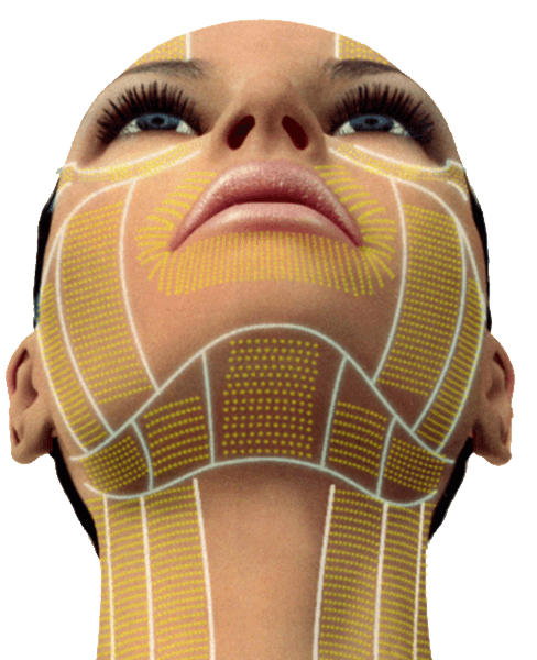 tratamiento-ultherapy